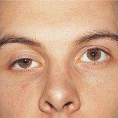 hängenden Augenlid