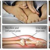 14 Natürliche Heilmittel für Gicht Schmerzen in den Füßen, Knöcheln und Finger