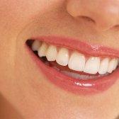 5 Gründe, warum Sie wollen einen Zungenschaber, um zu versuchen