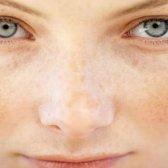 Störungen der dunkle Pigmentierung auf Gesicht, Hals und Arme: wie zu entfernen?