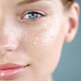 Ist Ihre Haut eine Eliminationsdiät braucht?