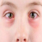 Hausmittel gegen Erkältung, Wunden, Kratzen im Hals und Husten