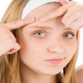 Natürliche hausgemachte Masken für Akne-Narben - 5 Rezepte