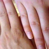 Die Anzeichen von Eisenmangel bei Frauen und Männern - 14 Zeichen