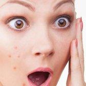Die gesunde Ernährung für Akne-Behandlung - 20 Diät-Tipps für die Haut Akne
