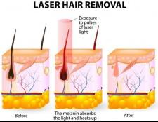 Dos und Don'ts der Laser-Haarentfernung