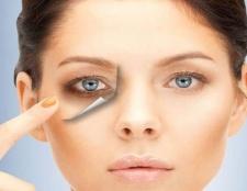 Wie wird man unter den Augen dunkle Augenringe loszuwerden schnell und natürlich